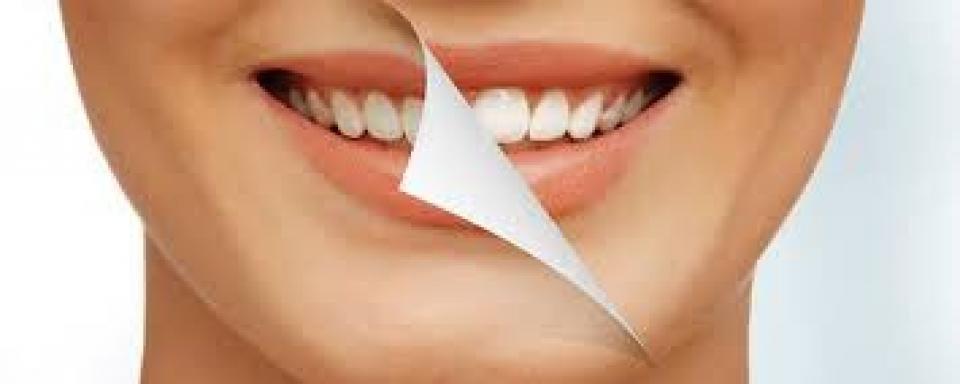 Pulizia denti più sbiancamento demo